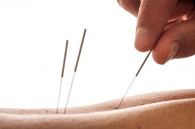 kinesisk akupunktur stockholm